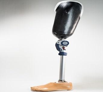 Oberschenkel Prothese